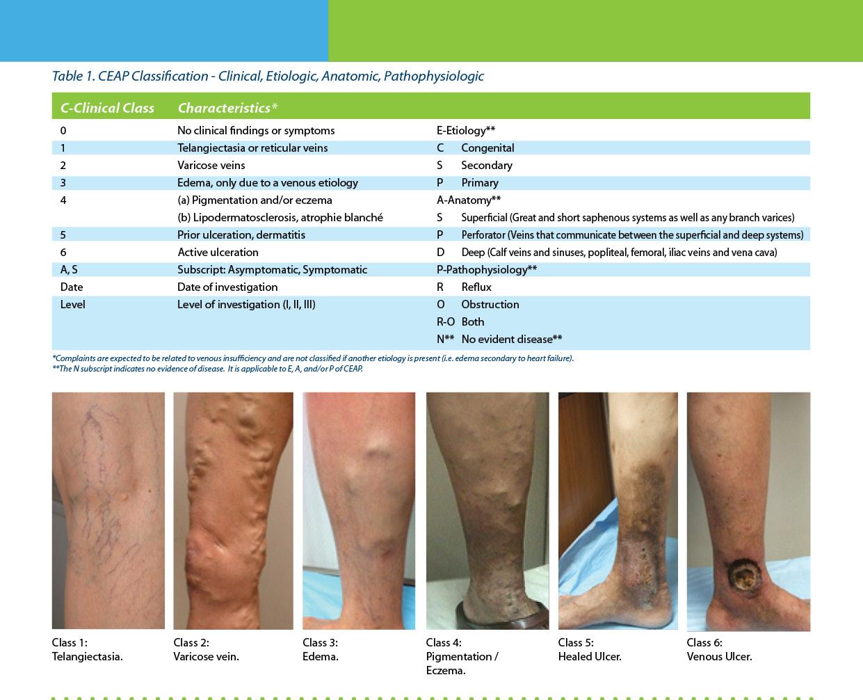 varicose vein classification